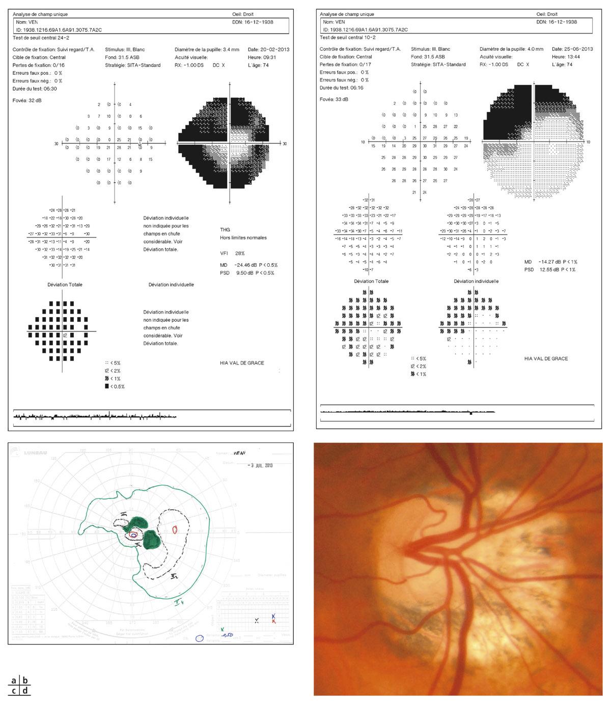 Rapport SFO 2014 - Glaucome primitif à angle ouvert 12-10 Glaucome évolué sévère de l'œil droit sur une papille en forte  dysversion. Relevés PAS 24-2 (a), 10-2 (b), périmétrie cinétique (c) et ...