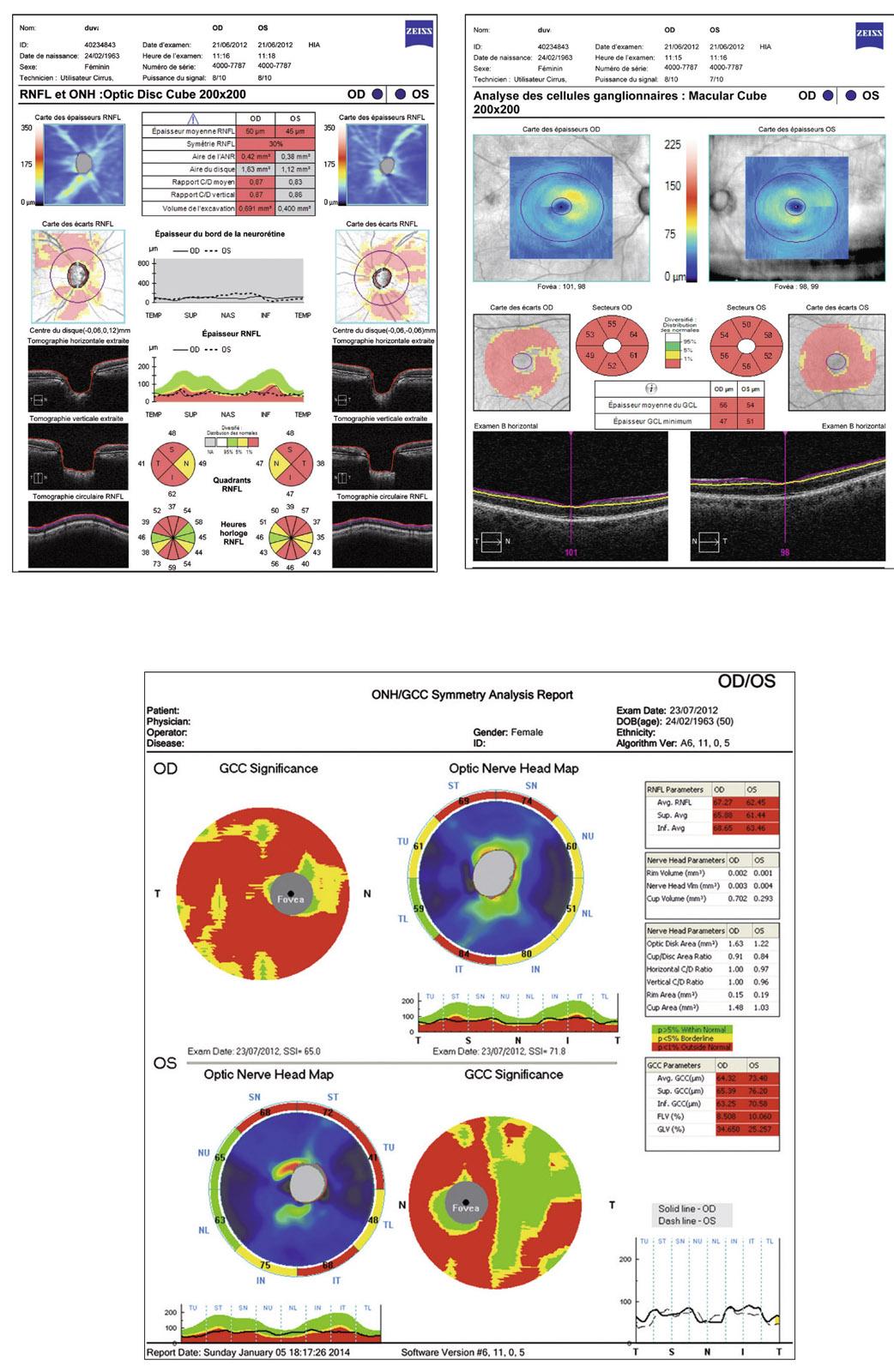 Rapport SFO 2014 - Glaucome primitif à angle ouvert 12-13 Glaucome avancé de l'œil gauche (OG) et modéré de l'œil droit (OD).  a, b. Rétinophotographies OD et OG. c, d. Relevés PAS blanc-blanc 24-2 OD  et OG. e ...