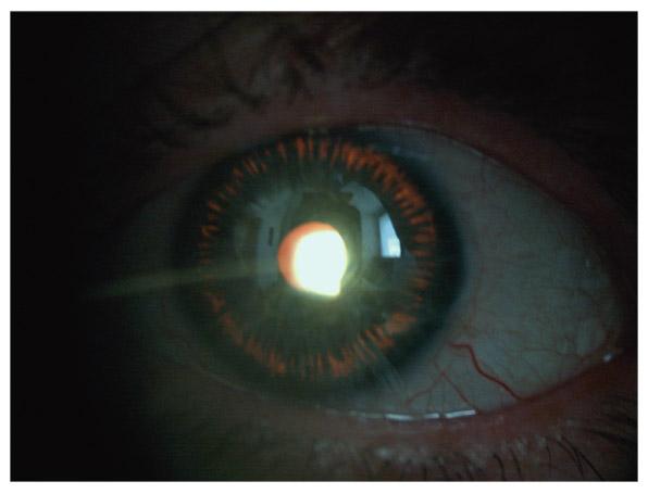 sclera de pigmentare oftalmologie)