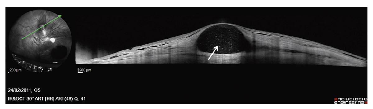 Rapport SFO 2014 - Glaucome primitif à angle ouvert