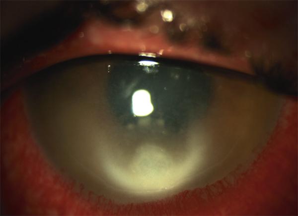 diagnosis uretrite donna brown