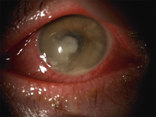 les lentilles de contact scléral