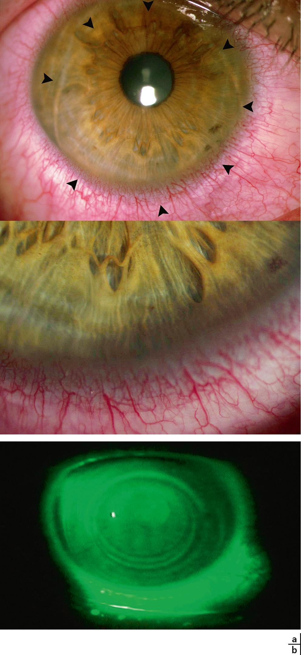 sclera de pigmentare oftalmologie
