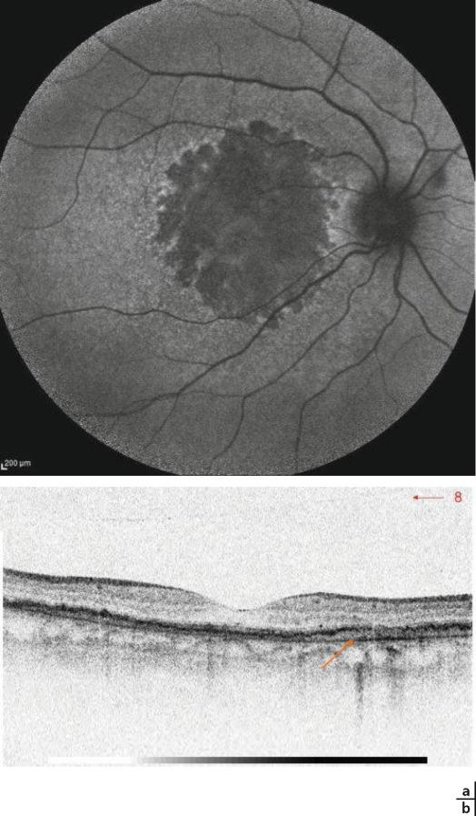 myopia vascularis tortuositás