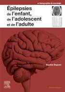 Epilepsies de l'enfant, de l'adolescent et de l'adulte