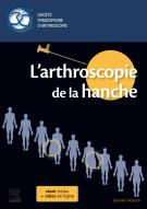 L'arthroscopie de la hanche
