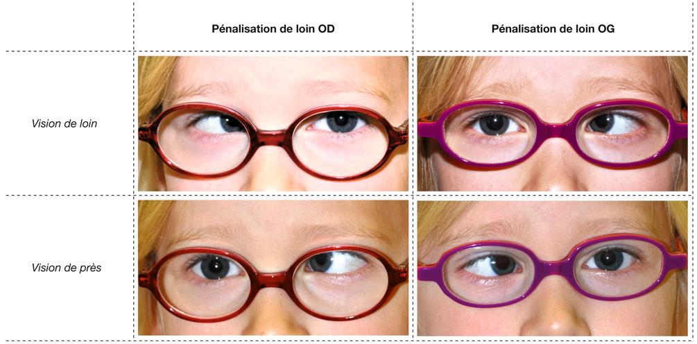 traiter baisse de la vue