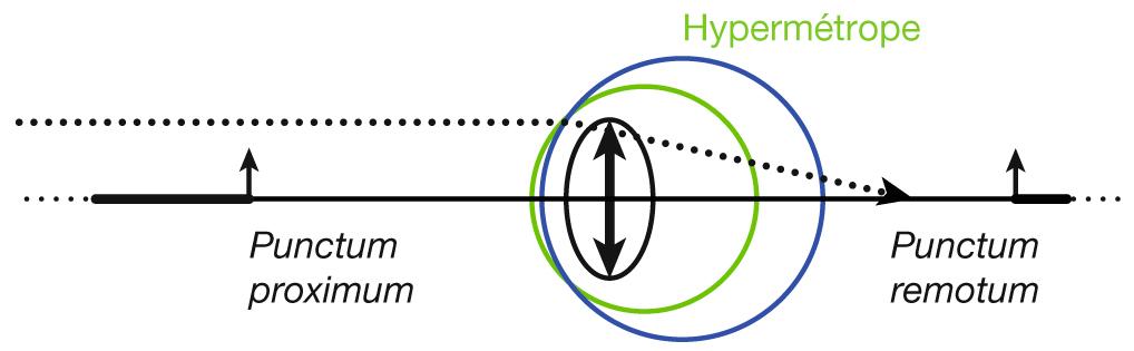 hypermétropie définition simple