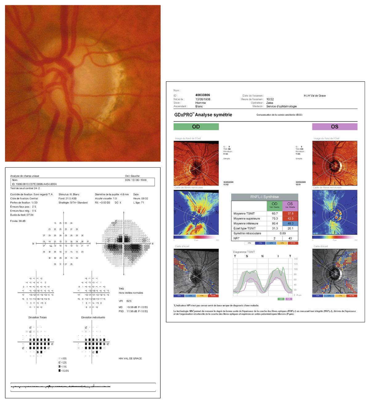 Rapport SFO 2014 - Glaucome primitif à angle ouvert 10-77 Relevé d'analyse des FNR au GDx PRO™ dans un cas de glaucome évolué,  confronté à la papille de l'œil gauche et au champ visuel correspondant.