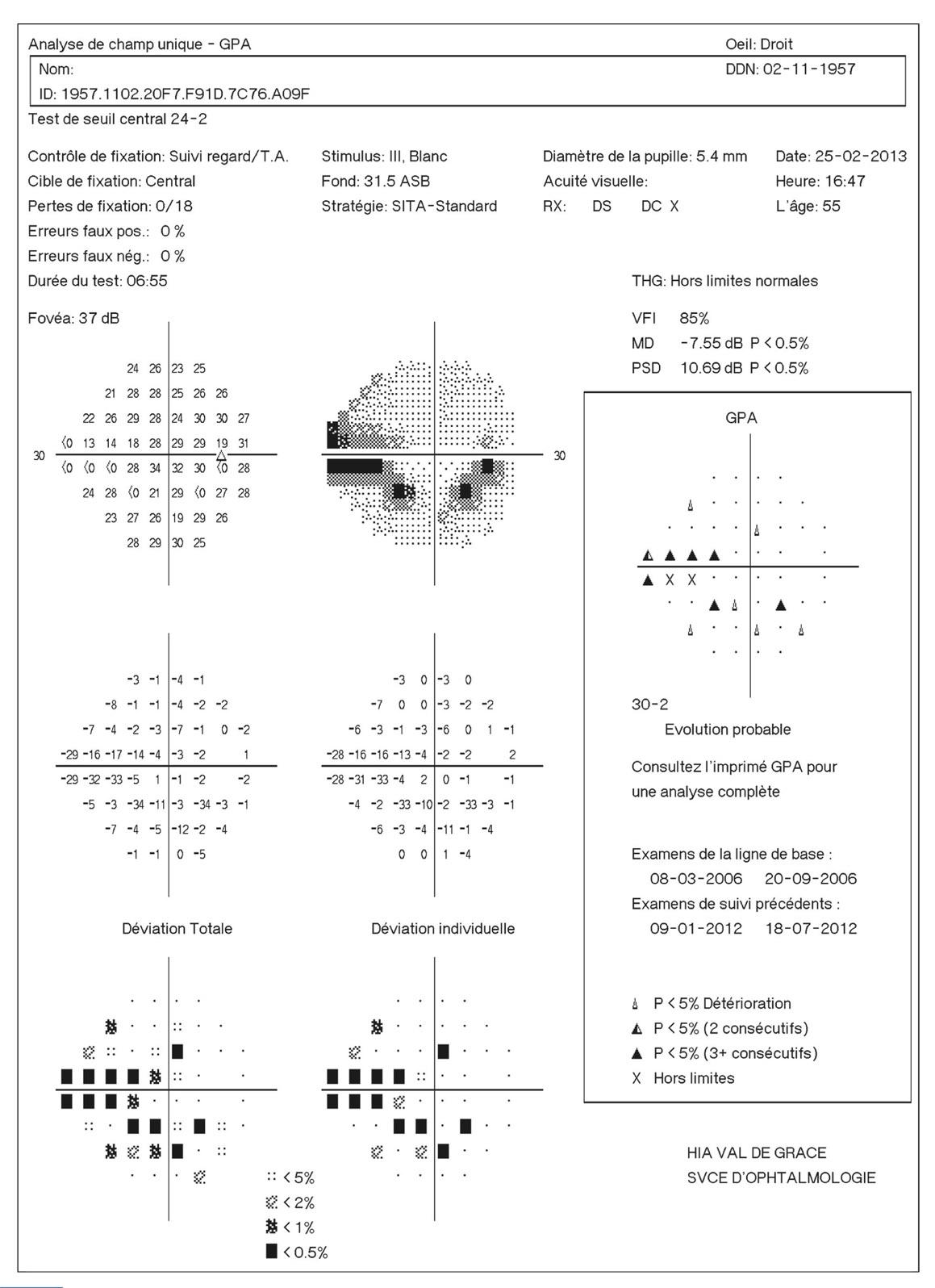 Rapport SFO 2014 - Glaucome primitif à angle ouvert 11-38 Relevé du champ visuel avec analyse GPA générée automatiquement sur  le relevé.
