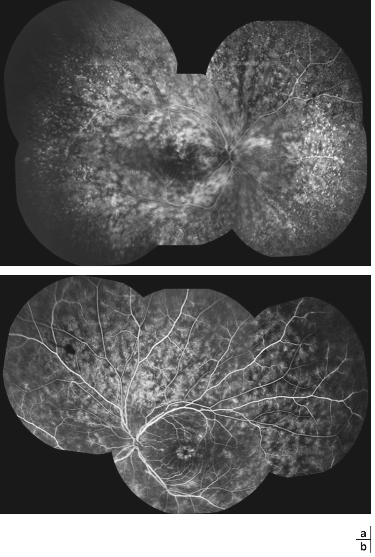 vascularite cérébrale lyme