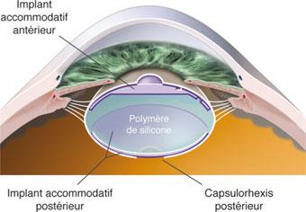 12-25 Implant de Nishi à double optique. 2c9d8f355780