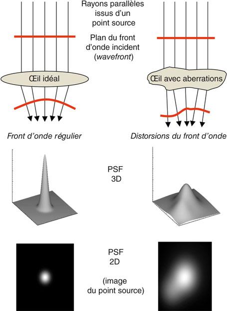 23-5 Principe de l aberrométrie du front d onde. 90f515e5cad6